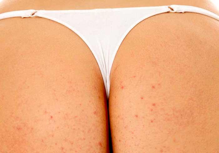 Causes des boutons (et des kystes) dans les fesses