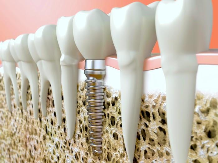 Por que meu implante dentário cai após radioterapia para câncer?