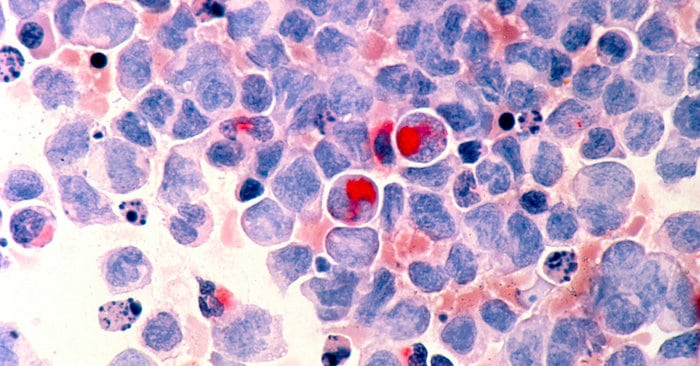 التعرف على علامات وأعراض سرطان الدم لدى الأطفال