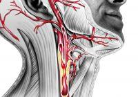 Carotiskrankheit: Symptome und Behandlungen von Stenose