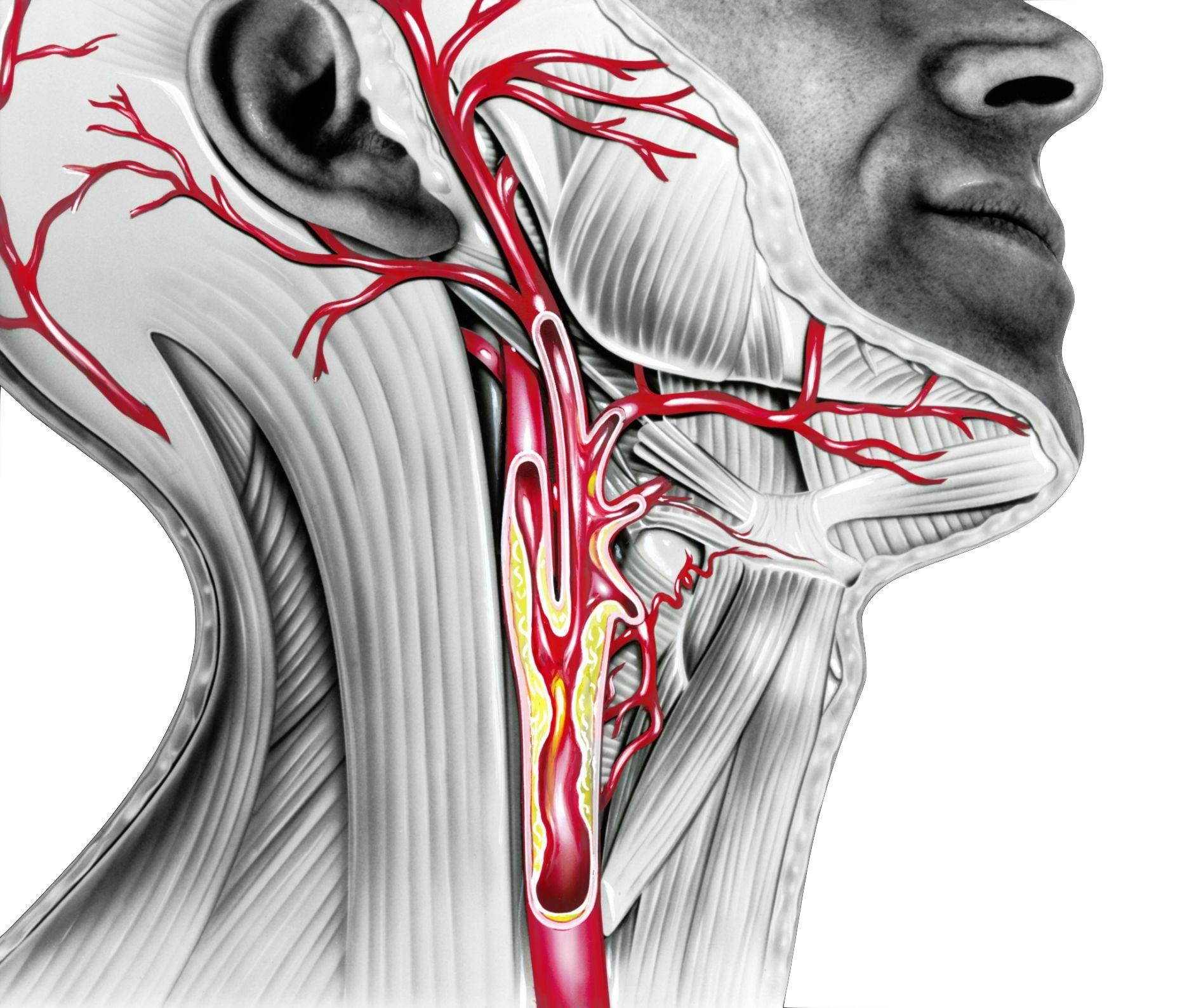 Enfermedad de la arteria carótida: síntomas y tratamientos de la estenosis