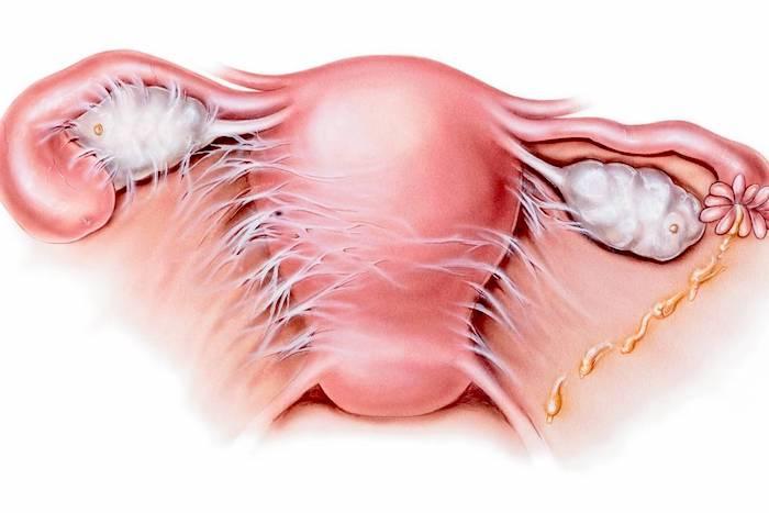 Dolor pélvico: remedios caseros para la enfermedad inflamatoria pélvica