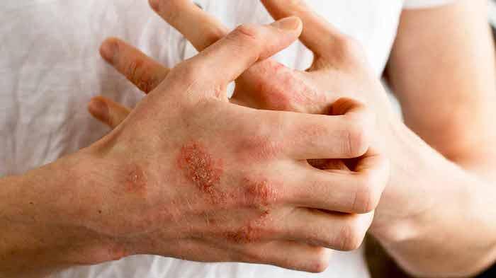 Remedios caseros para la dermatitis y el eczema