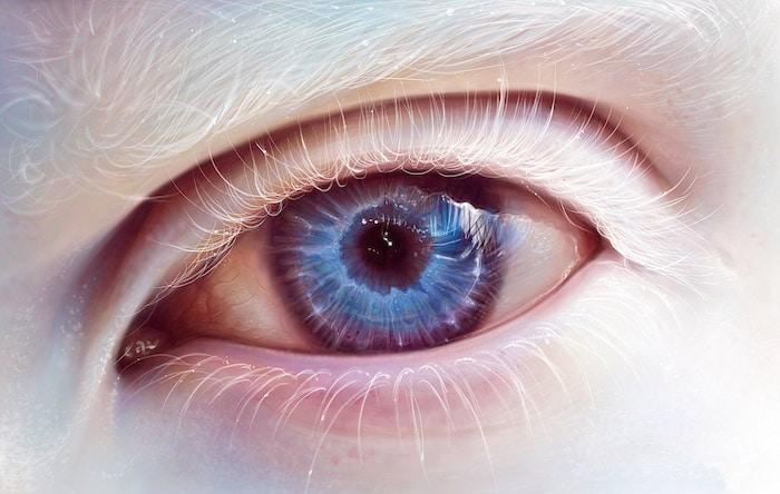 Symptome und Behandlung von Augen Albinismus