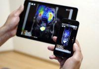 Die besten medizinischen Anwendungen für diagnostische Bildgebung und Radiologie
