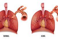 Ursachen, Symptome und Diagnose von Asthma