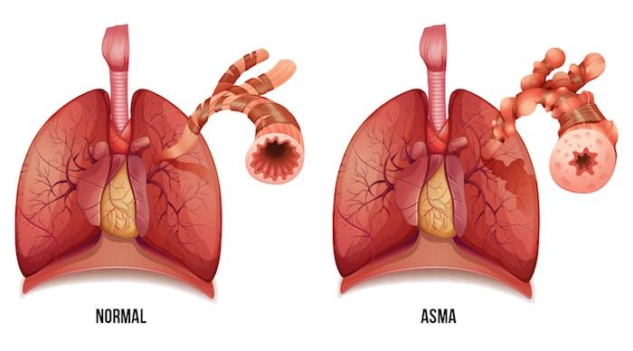 Causes, symptômes et diagnostic de l'asthme