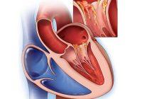 Endocarditis Infecciosa: tratamiento para las enfermedades del corazón