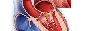 संक्रामक अन्तर्हृद्शोथ: हृदय रोग के लिए उपचार