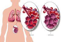 Enfisema: causas, síntomas y tratamiento