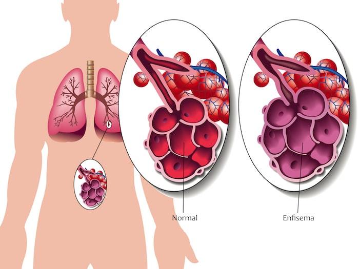 Emfizem: vzroki, simptomi in zdravljenje