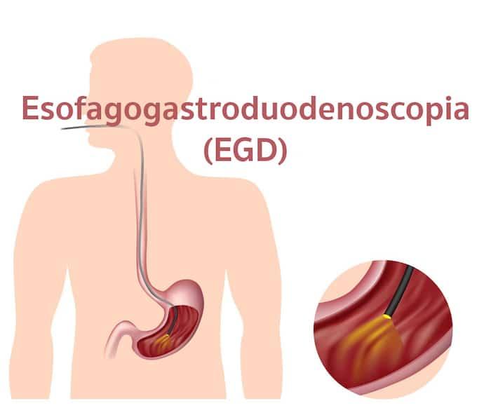 Esofagogastroduodenoscopia: EGD के लिए इंतजार करना