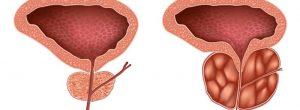 Opciones de tratamiento para la hiperplasia prostática benigna (HPB)