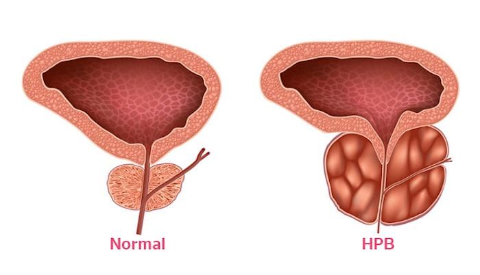 Options de traitement pour l'hyperplasie bénigne de la prostate ...