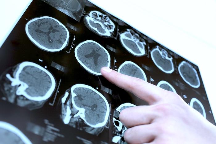 L'hydrocéphalie: l'eau dans le cerveau