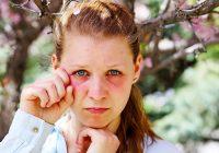 Olhos inchados e inchaço periorbital