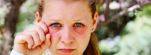 Les yeux gonflés et le gonflement de la zone périorbitaire