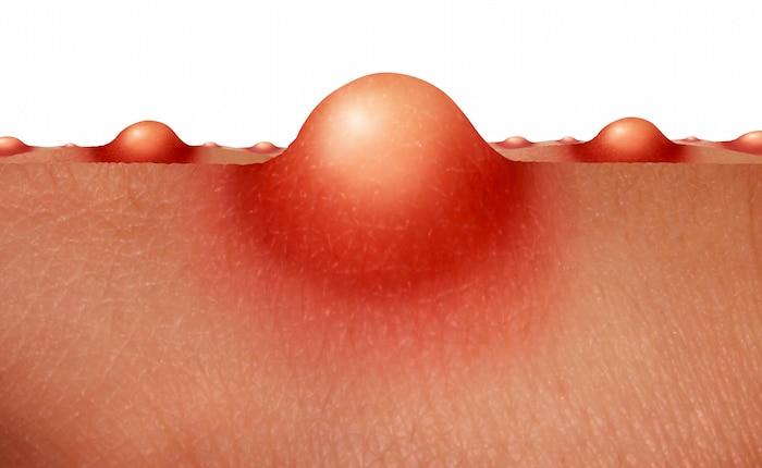 """Un dolor real en el trasero: ¿cuál es el tratamiento para los furúnculos"""""""