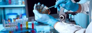 El descubrimiento del 'gen maestro' de los vasos sanguíneos podría conducir a tratamientos para la enfermedad del hígado