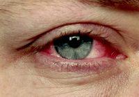 Enrojecimiento alrededor de los ojos puede tener muchas causas