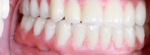 永久性更换牙齿用的人没有牙齿: 植牙对假牙