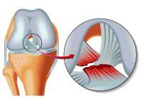 إصابة الرباط الصليبي: الأسباب والأعراض والجراحة وفترة الشفاء من دوري أبطال آسيا