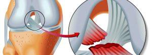 Lesión del ligamento cruzado: causas, síntomas, cirugía y tiempo de recuperación de LCA