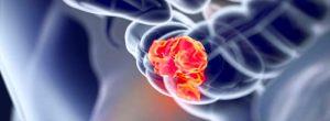 Il a été découvert qu'un nouveau médicament contre le cancer de l'intestin