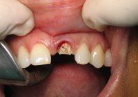 ¿Está usted perdiendo un diente? 3 mejores métodos para el reemplazo permanente del diente