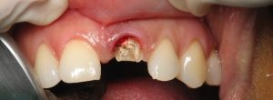 Ste izgubili zob? 3 najboljše metode za trajno zamenjavo zob