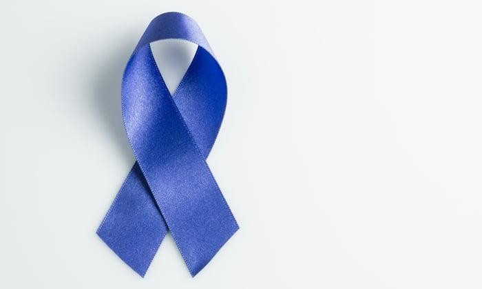 Un ajuste de cintura reduce el riesgo de una mujer de morir de cáncer de colon