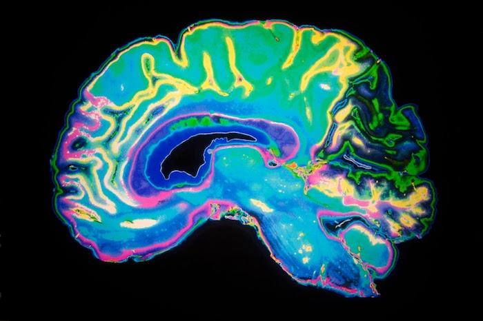 Los investigadores descubren qué región del cerebro motiva el cambio de comportamiento