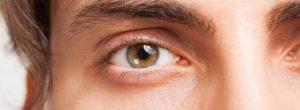 Les hommes blancs physiquement actif avec haut risque de l'accumulation de plaque dans les artères
