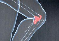 ¿Tiene las rodillas malas por sus genes?