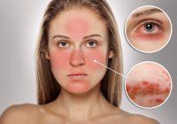 Rosácea na pele - As melhores dicas para a cura