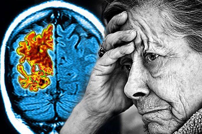 5 Alternative Therapien bei Alzheimer