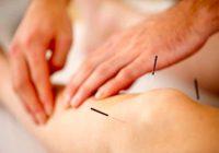 La acupresion funciona tan bien como la acupuntura