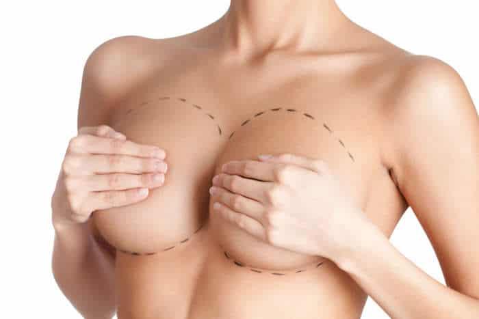 ¿Considerando la reducción de senos? ¿Qué necesita saber?