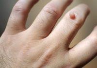 Homöopathisches Mittel gegen Warzen