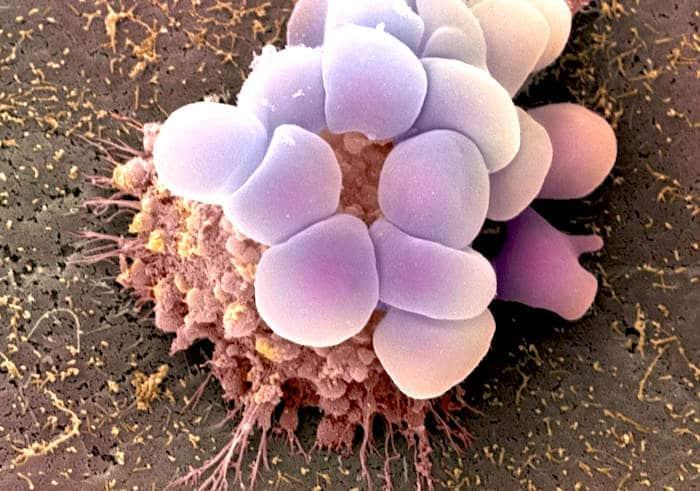 Los diez mitos mas comunes del cancer de cuello uterino