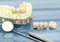 جسور الأسنان ، التيجان ويزرع: بديل دائم للأسنان عند المدخنين؟
