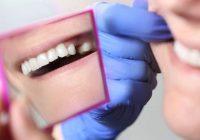 الجسور ، التيجان والزرع: استبدال الأسنان بشكل دائم في مرضى السرطان