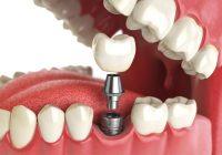الجسور ، التيجان والزرع: استبدال دائم للأسنان في مرضى القلب