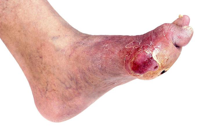 Úlceras del pie diabético explicadas