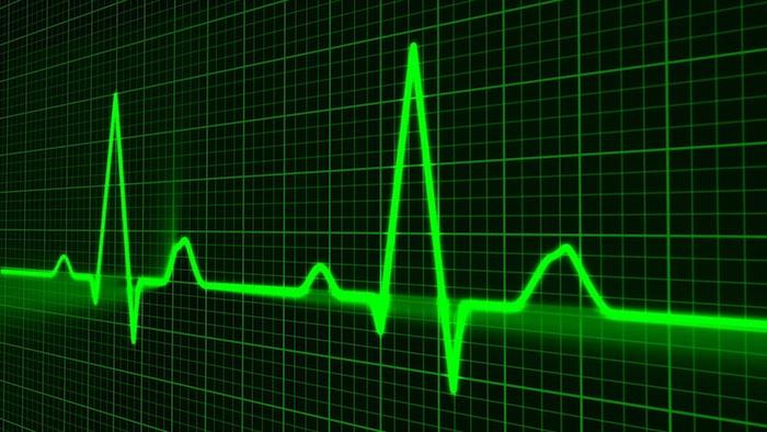 ¿Como podemos ver el latido del corazón y cuando sabemos si es normal o no?