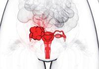 年龄和卵巢癌