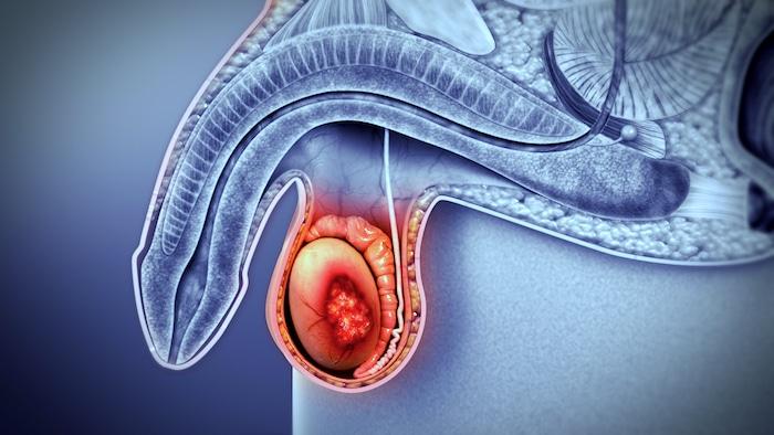 سرطان الخصية وظروف الخصية الأخرى