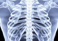 Was kann Schmerzen unter dem linken Brustkorb verursachen?