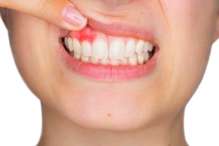 Reemplazo permanente del diente en pacientes con enfermedad de las encías