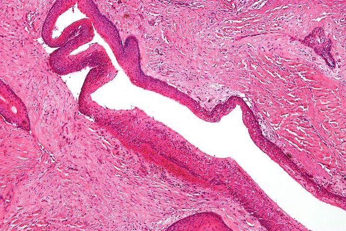 Síndrome de Gorlin (Síndrome del carcinoma basocelular nevoide)